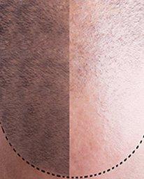 mikropigmentáció