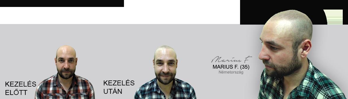 marius_homepage