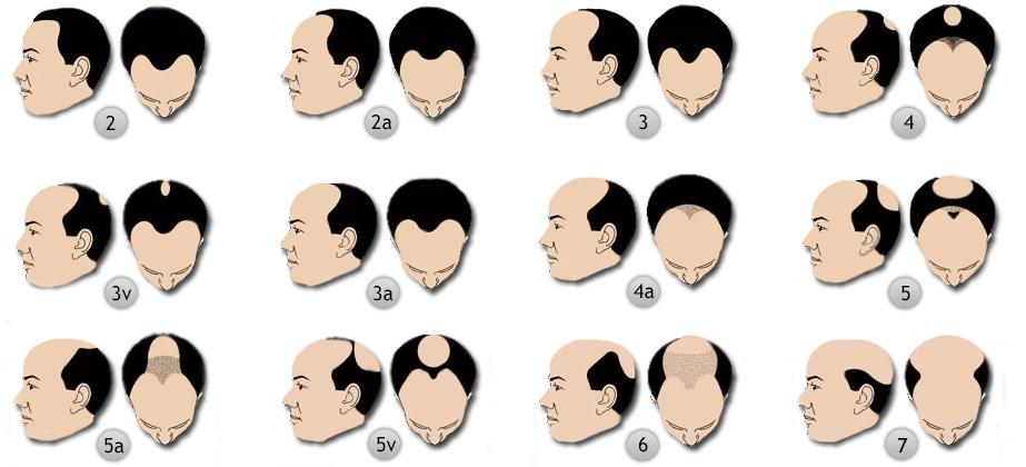 férfias típusú kopaszodás