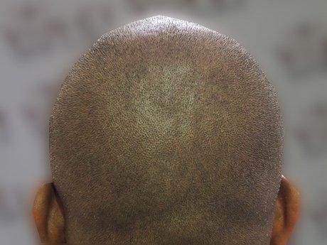 Trichopigmentáció