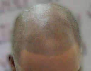 hajbeültetés korrekció